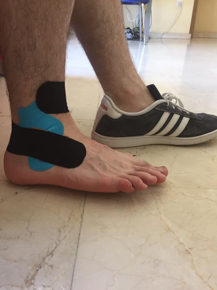 Fisioterapia Murcia